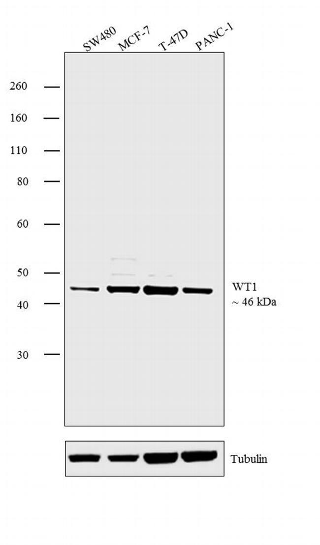 WT1 Antibody (PA5-16879) in Western Blot