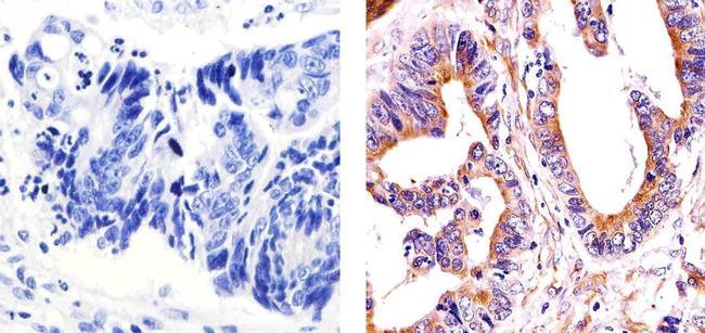 alpha Tubulin Antibody (PA5-16891) in Immunohistochemistry (Paraffin)