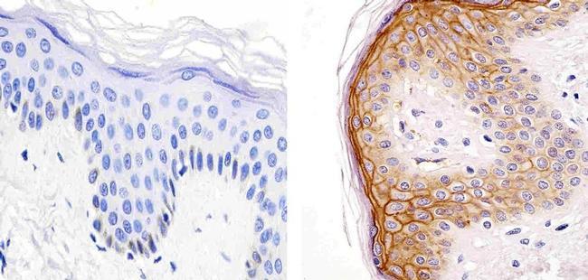 CD138 Antibody (PA5-16918) in Immunohistochemistry (Paraffin)