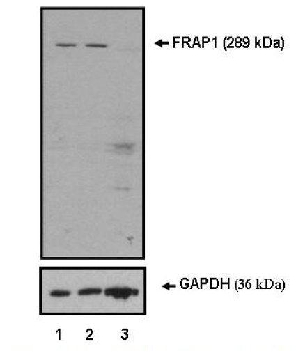 mTOR Antibody (PA5-17780) in Western Blot