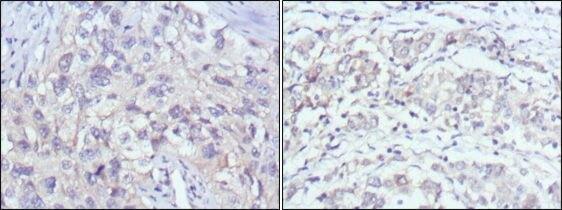 PAK2 Antibody (MA5-15527) in Immunohistochemistry