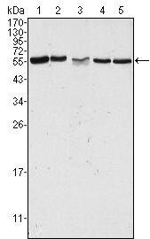 PAK2 Antibody (MA5-15527) in Western Blot