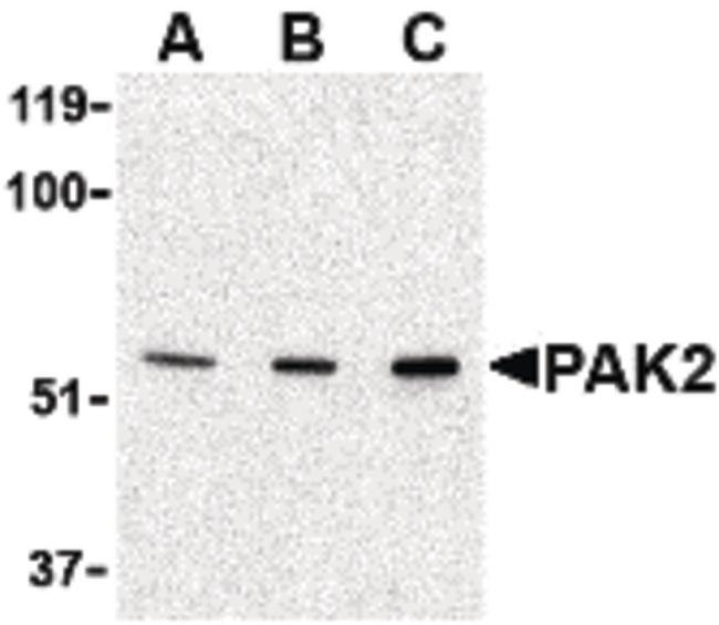 PAK2 Antibody (PA5-20254) in Western Blot