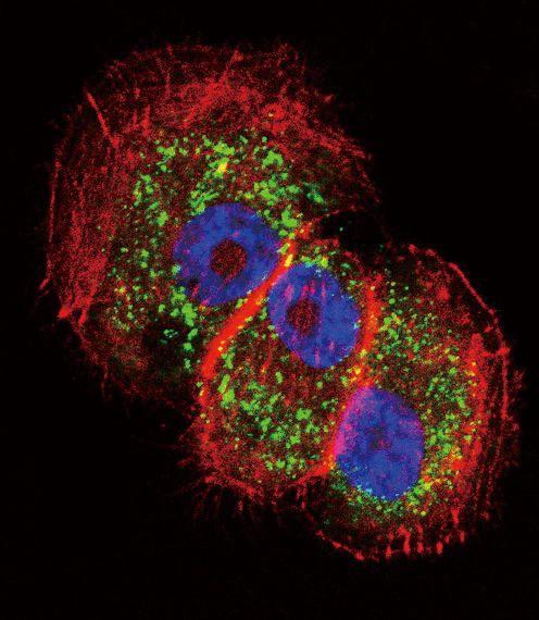 Parkin Antibody (PA5-13399)