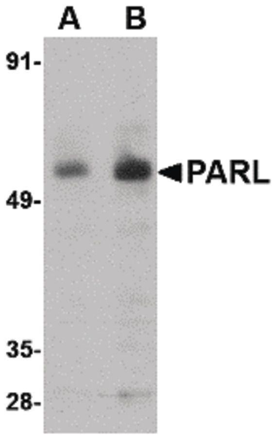 PARL Antibody (PA5-20579) in Western Blot