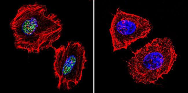 PARP Antibody (MA3-950) in Immunofluorescence