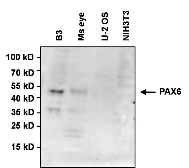 PAX6 Antibody (MA1-109) in Western Blot