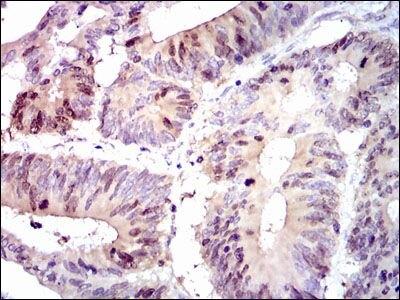 PBK Antibody (MA5-17144) in Immunohistochemistry