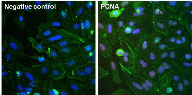 PCNA Antibody (MA5-11358) in Immunofluorescence