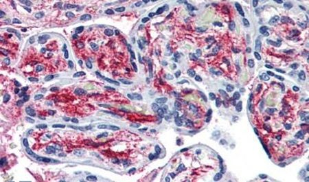 PCSK6 Antibody (PA5-32966)