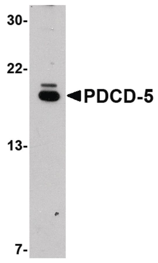 PDCD5 Antibody (PA5-20682) in Western Blot
