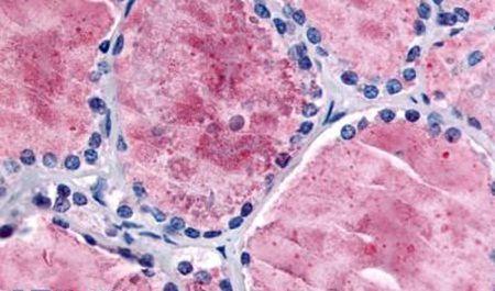 PDE8B Antibody (PA5-32981) in Immunohistochemistry (Paraffin)