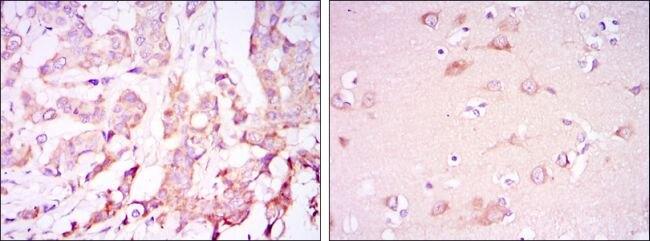 PDK1 Antibody (MA5-15797) in Immunohistochemistry