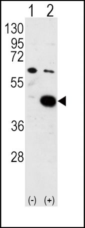 PDK2 Antibody (PA5-13774) in Western Blot