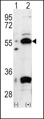 PDHX Antibody (PA5-11896) in Western Blot