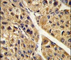 PEX11A Antibody (PA5-26025) in Immunohistochemistry