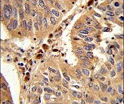 PEX16 Antibody (PA5-26158)