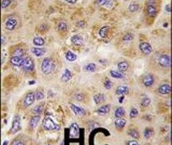 PFKFB1 Antibody (PA5-15460)