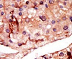 PFKFB2 Antibody (PA5-15457) in Immunohistochemistry