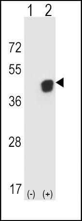 PGK1 Antibody (PA5-13863) in Western Blot