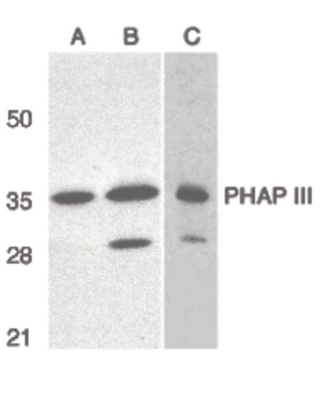ANP32E Antibody (PA5-20023) in Western Blot