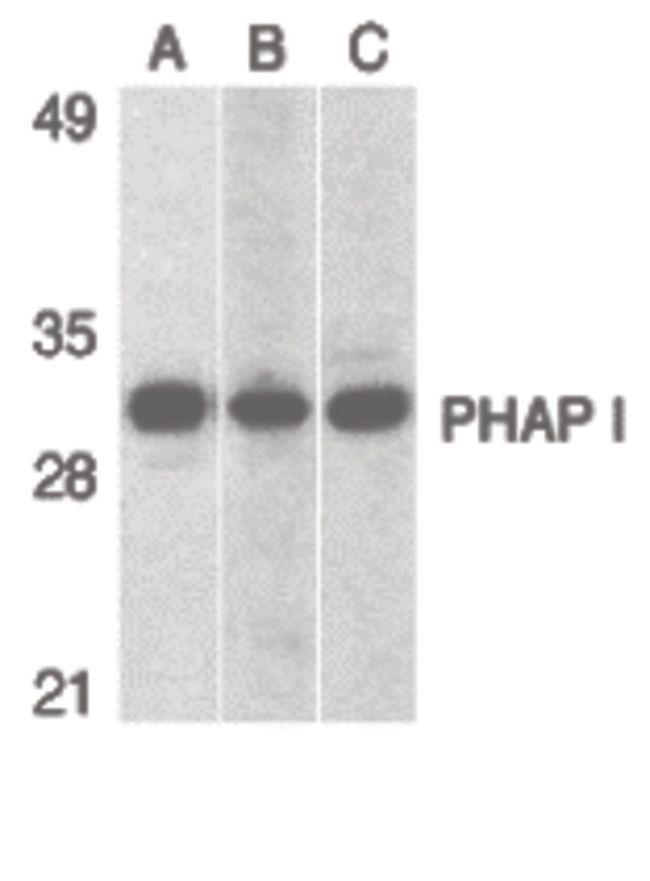 PHAP I Antibody (PA5-20025) in Western Blot