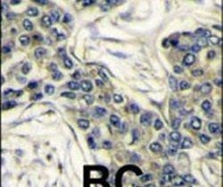 PIK3CA Antibody (PA5-15246)