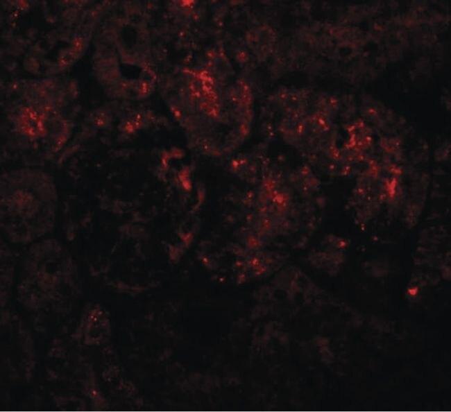 PIAS1 Antibody (PA5-20951)