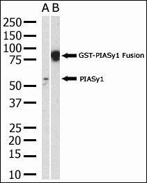 PIASy Antibody (PA5-11346) in Western Blot