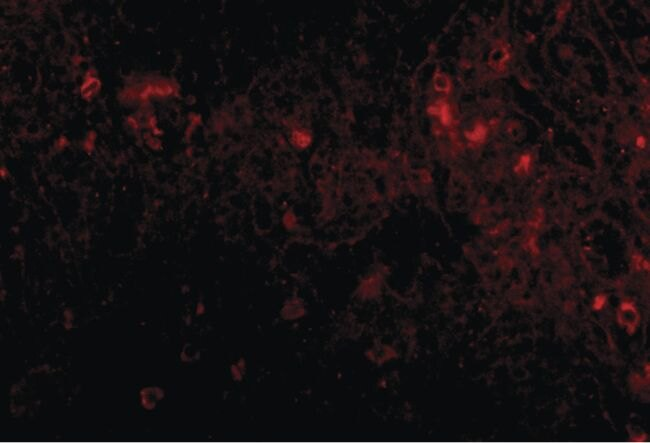 PIGY Antibody (PA5-20651) in Immunofluorescence