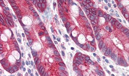 PIGR Antibody (PA5-34103) in Immunohistochemistry (Paraffin)