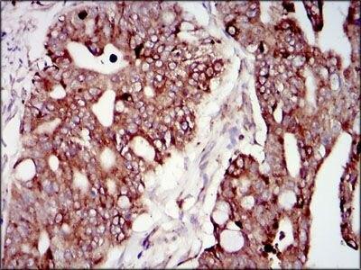 PIK3R1 Antibody (MA5-17150) in Immunohistochemistry