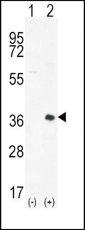 PIM2 Antibody (PA5-15125) in Western Blot