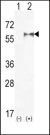 PIP5K1A Antibody (PA5-15281)