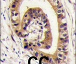 PIST Antibody (PA5-14114) in Immunohistochemistry
