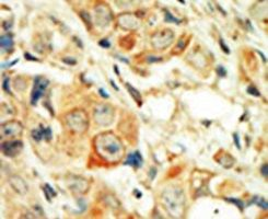 PKC alpha Antibody (PA5-13739) in Immunohistochemistry