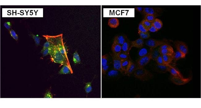 PKC alpha Antibody (MA1-157) in Immunofluorescence