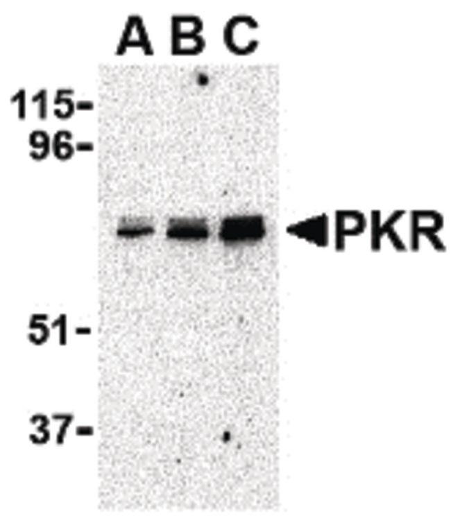 PKR Antibody (PA5-20283) in Western Blot