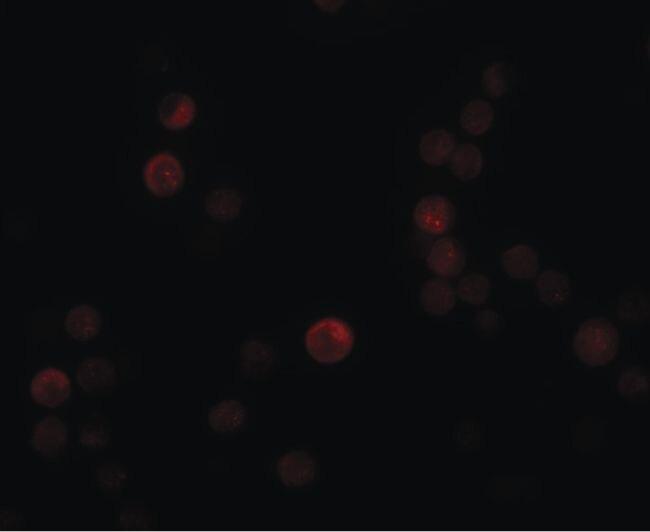 PLAC4 Antibody (PA5-21047) in Immunofluorescence