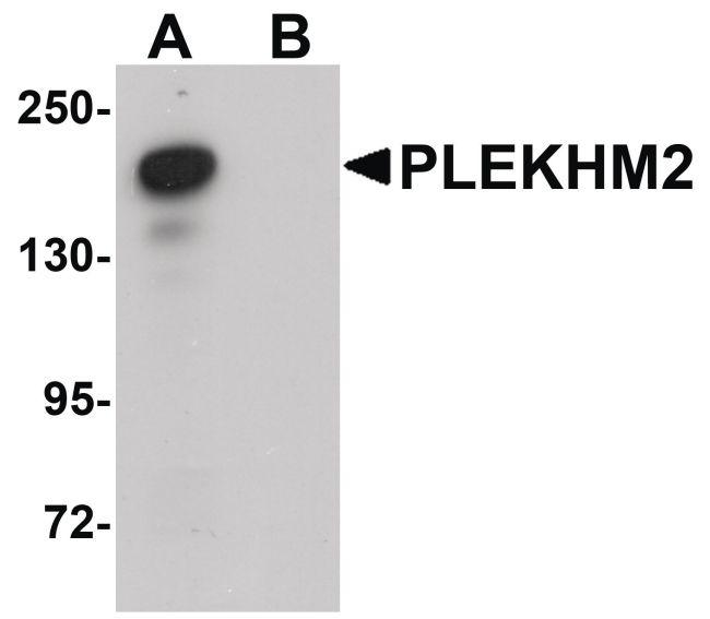 PLEKHM2 Antibody (PA5-20850) in Western Blot