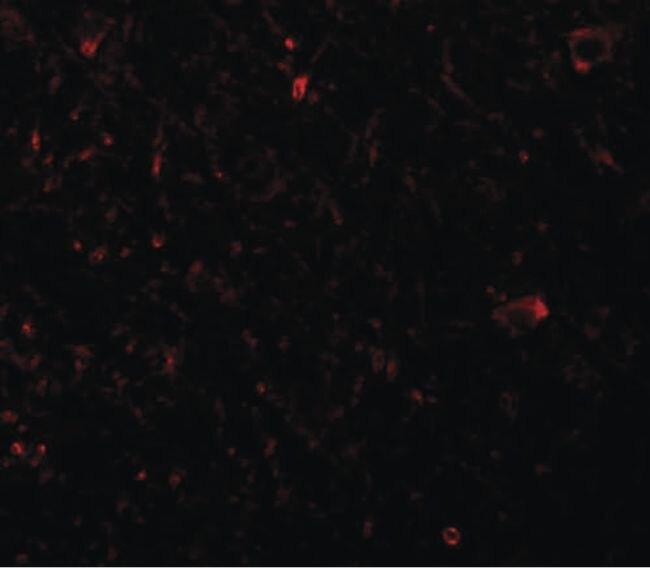 PLEKHM3 Antibody (PA5-20851) in Immunofluorescence