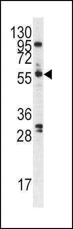 PLK1 Antibody (PA5-15129) in Western Blot