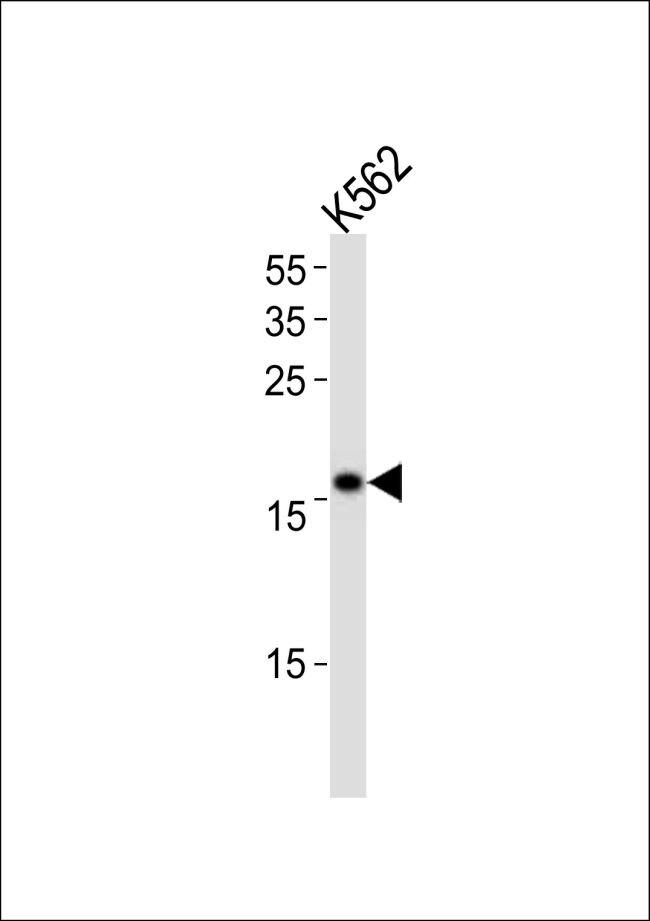 POLE3 Antibody (PA5-14201) in Western Blot