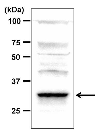 PP2A alpha Antibody (PA5-29754) in Western Blot