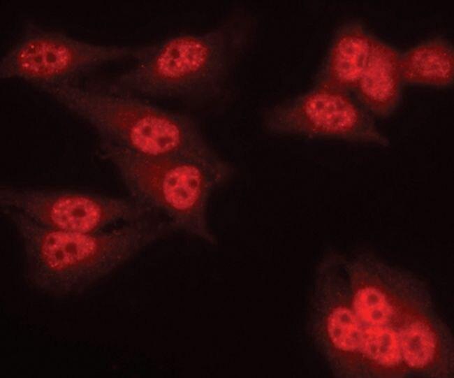 PPP2R2A Antibody (PA5-17515) in Immunofluorescence