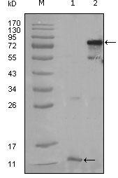 PPAR gamma Antibody (MA5-15417)