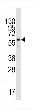 PPAT Antibody (PA5-12333) in Western Blot
