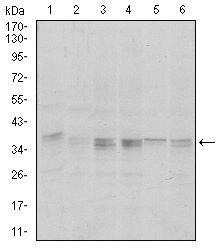 PP1 alpha Antibody (MA5-17155)