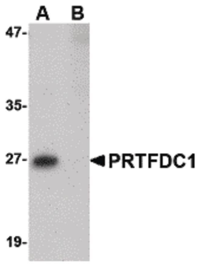 PRTFDC1 Antibody (PA5-20593) in Western Blot