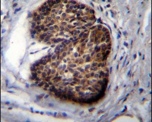 PSCA Antibody (PA5-11463) in Immunohistochemistry